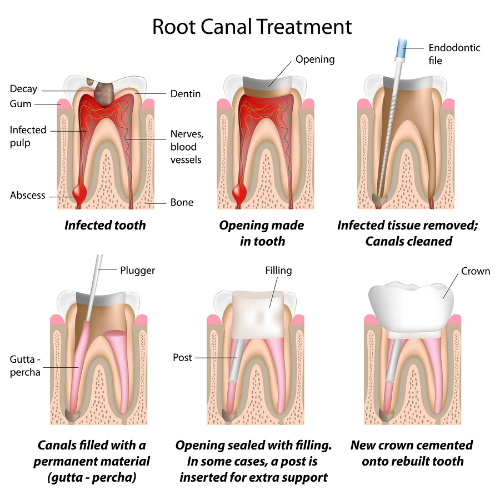 Root Canal Therapy in Austin, TX 78759